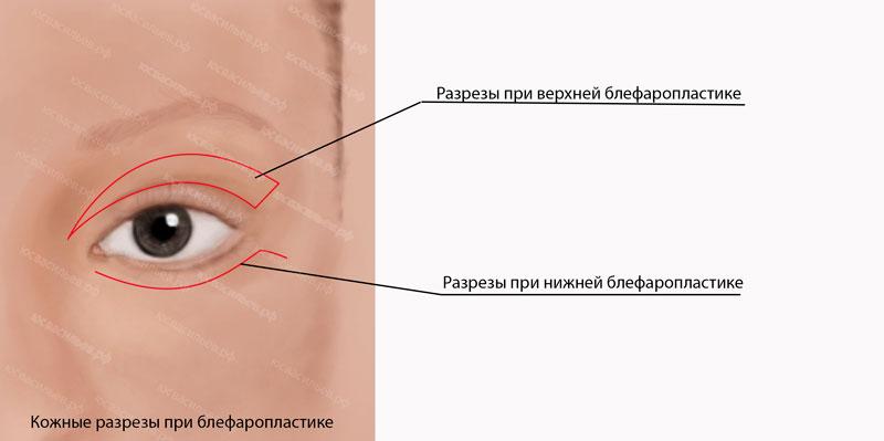 Блефаропластика нижние веки разрез